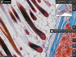 Olympus Releases Free Virtual Microscope Image App for the Ipad