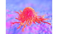Exosome Vesicle Research Provides New Understanding in Cancer Immunology at the University of...