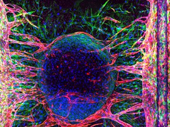 Advancing angiogenesis research with new imaging technology
