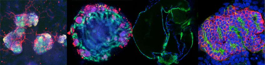 Kidney Organoids in the Freedman lab