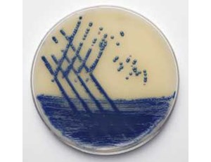 Brilliance MRSA AGAR