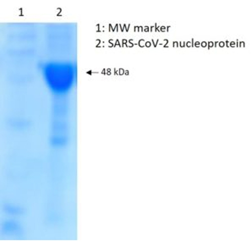 SARS-CoV-2 Nucleoprotein, His-Tag (E. coli) by The Native Antigen Company thumbnail