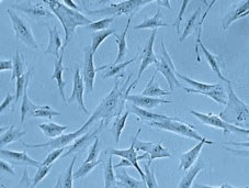 Human Fibroblasts by PromoCell GmbH product image