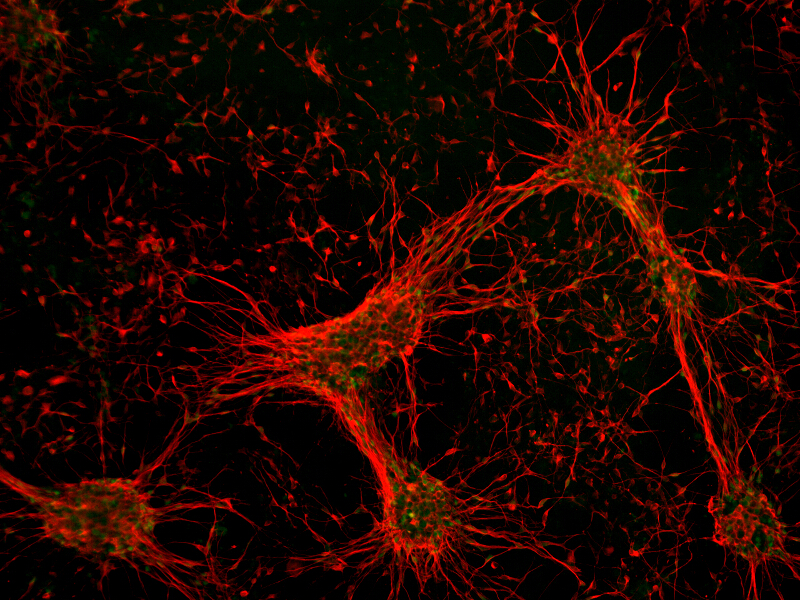 Plated Human iPSC-Derived Cerebral Cortical Neurons (Female) by Axol Bioscience thumbnail
