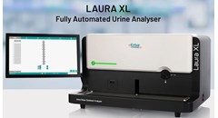 LAURA XL: The fully-automated urine analyzer